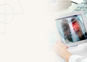 Especialização em Oncologia Torácica