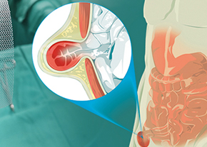 Cirurgia das Hérnias Inguinais e Crurais